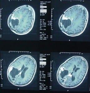 Susan Reynard's Brain X-Ray