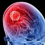 Aggressive Brain Tumors