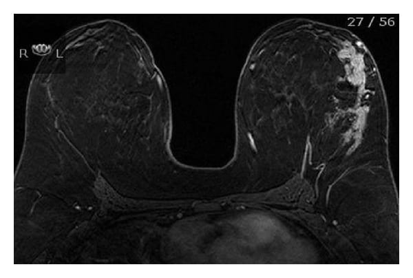 Why not to carry cell phone in bra: mammogram of breast cancer patient.